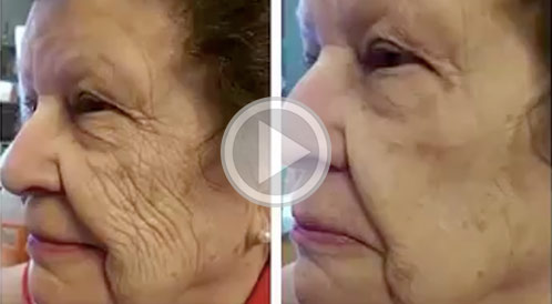 Instantly Ageless Before & After