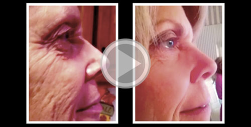 Luminesce Before & Afters